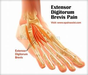 Extensor Digitorum Brevis Pain|Causes|Symptom|Treatment