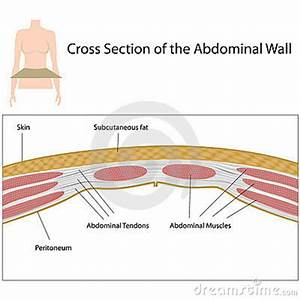 Cross Section Of Abdominal Wall Stock Vector