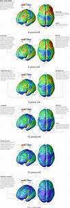 3d Brain Model Labeled