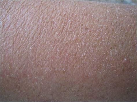 Droge rode vlekjes op huid