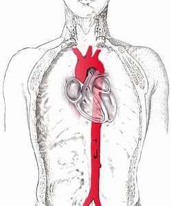 Гипертония разница между верхним и нижним давлением