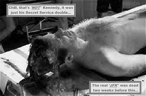 Jfk Autopsy Pictures To Pin On Pinterest ThePinsta