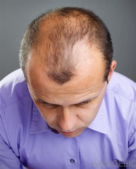 What Is the Connection between Lysine and Hair Loss?