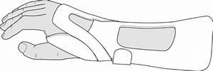 Guide Distal Radial Nerve Splint