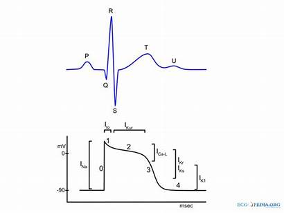 Potential Action Electrocardiogram Ecg Actionpotential Representation Wikidoc