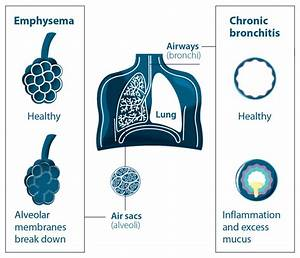 Know Your Disease  Chronic Obstructive Pulmonary Disease