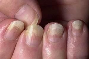 Лечить гомеопатией грибок ногтей