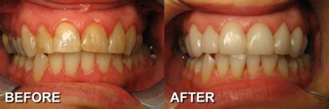 Before & After Photos Smile Makeovers  Cosmetic Dentist. Complications Of Asthma Tree Spraying Services. Central Air Conditioning Design. Merchant Payment Gateway Aarp Estate Planning. Walmart Automotive Service Food Service Mats