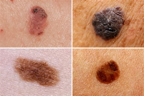 Melanoma Images 2018 Images Of Melanoma Images Of Melanoma In Situ