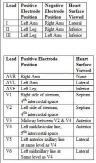 12 Lead EKG Placement Chart