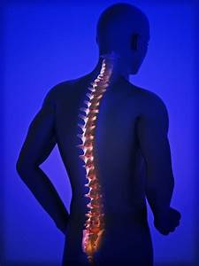 Spinal Osteoarthritis  Spondylosis