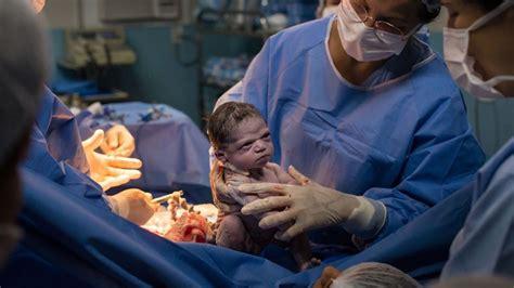 facebook la foto del bebe  nace enfadado  sin llorar