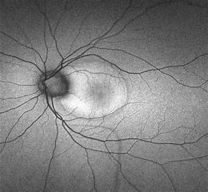 Optic Pit Maculopathy - Fundus Autofluorescence - Retina ...