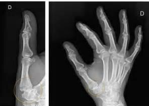 Osteoarthritis Thumb Joint Surgery