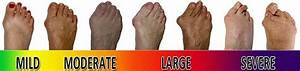 Foot Bunion Causes Symptoms Treatment Foot Explored