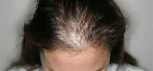 Male Pattern Baldness Female Pattern Baldness Alopecia