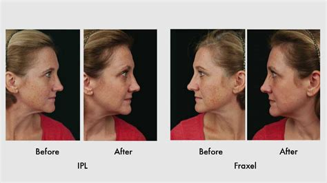 Treatment Of Sun Damage With Ipl Vs Fraxel  Youtube. English Language Learners Software. Building Insurance Quotes Event Venues London. Steps To Prepare For Divorce. Permanent Hair Transplant Greater Valley Ems. Ecommerce Payment Gateways Home Alarm System. San Antonio Assisted Living Home Brew Review. Art Institute Of Durham Body Shops In Phoenix. Car Insurance For Under 25 Build Your Website