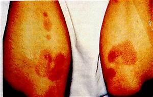 Drug Points  Fixed Drug Eruption With Fluconazole