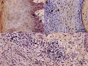 Photomicrographs From Gingival Tissue From Patients With