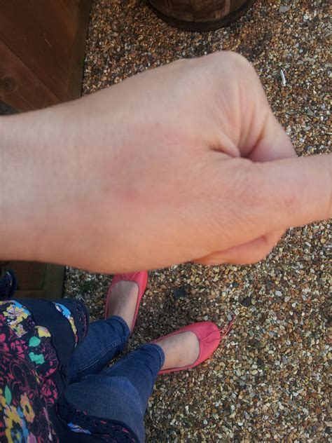 Red Ring Not Raised Or Itchy With A Bruise Like Colour In The