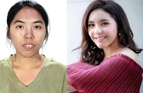 gadis thailand bergigi tonggos jadi cantik dahsyat setelah