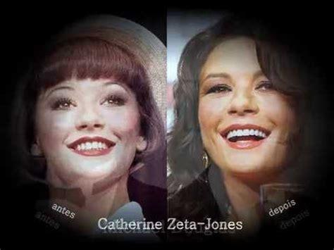 sorrisos de celebridades antes e depois do dentista youtube