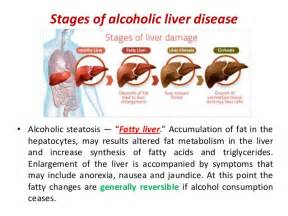 If You Drink Alcohol Regularly, You Need To Read This (Video) - Health  Hepatitis Cirrhosis