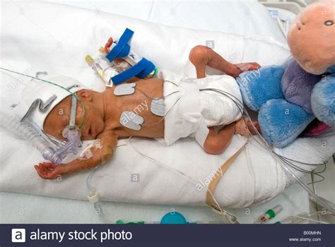Premature Baby In An Incubator On A Neonatal Intensive