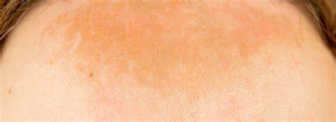 skin pigmentation removal toronto scarborough laser surgery