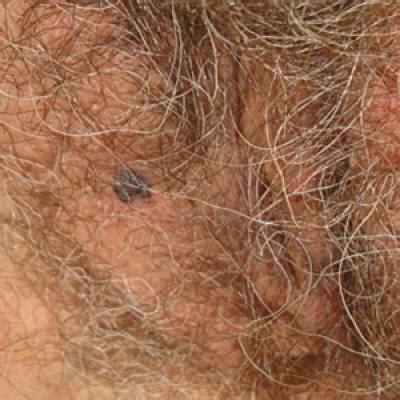 solitary angiokeratoma   vulva mimicking malignant