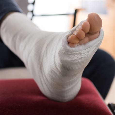 broken ankle recovery mobility sports