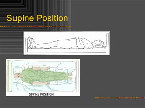 Positioning And Draping - positioning and draping and bed mobility power point
