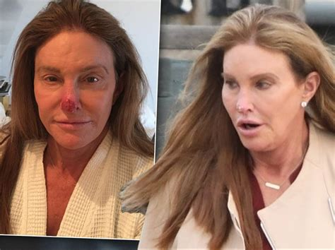 skin cancer removed caitlyn jenner fears shell lose