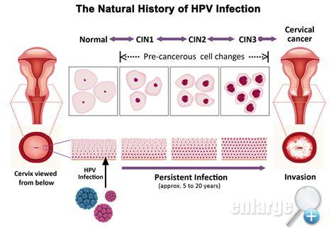 Cervical Cancer HPV Infection