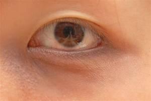 3 Ways To Make Fake Rings Under Your Eyes