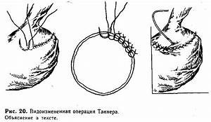 Шелковица при лечении гипертонии