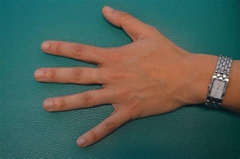 fingerschmerzen ursachen  tun arten verletzung