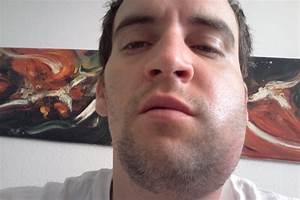 Fundraiser by Christian Nichols : Christian's Abcess Drain