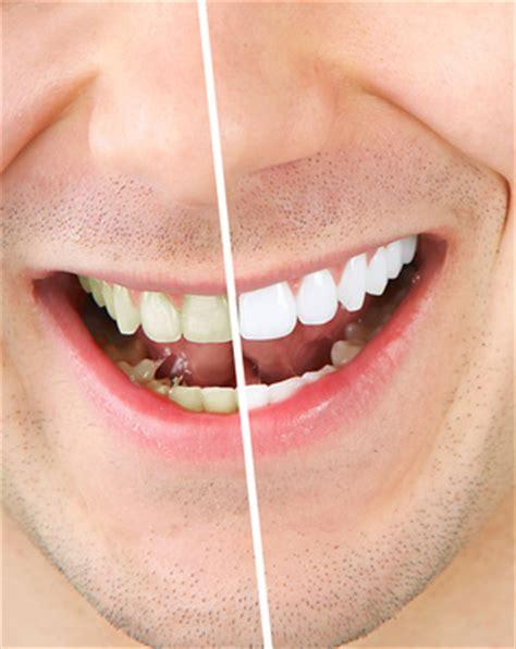 blanchiment des dents astuces pour se blanchir les dents garde la p 234 che