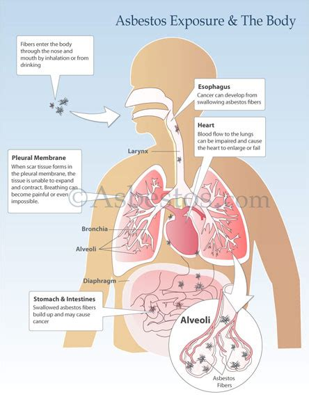 asbestos exposure signs symptoms risks long term
