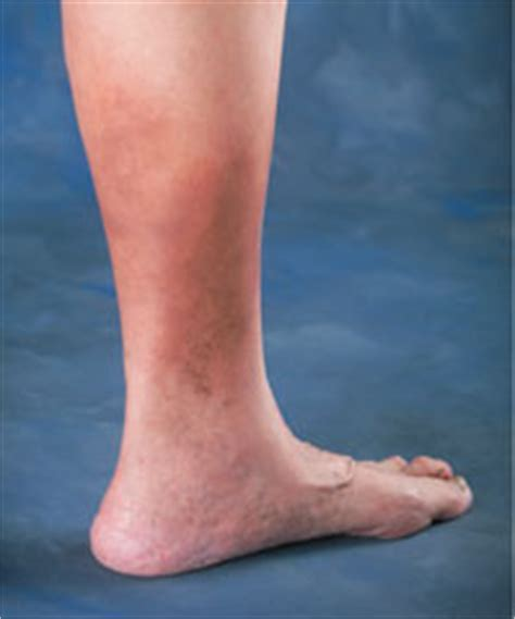 brown spots   ankles varicose