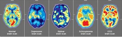 Scan Mental Depression Schizophrenia Ocd Ct Brain