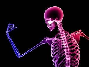 We Have Weaker Bones Than Our Hunter