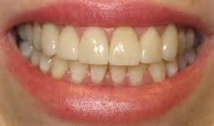 Fake Teeth That Look Real