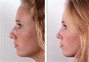 Prix D Un Piercing Au Nez : rhinoplastie tunisie prix tarif chirurgie nez moins chere ~ Medecine-chirurgie-esthetiques.com Avis de Voitures