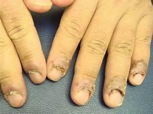 Гельмифаг от грибка ногтей цена