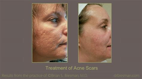 scar treatment    gallery nashville tn