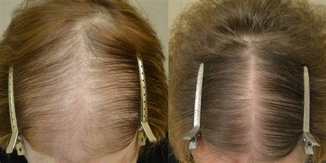 Finasteride and Topical Minoxidil (Females) Before & After