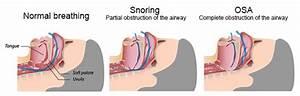 Sleep Loss And Sleep Apnea Health Risks Stamford Ct