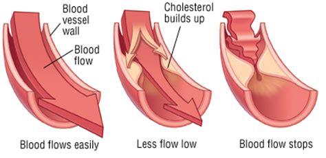 natural remedies  high cholesterol natural herbs